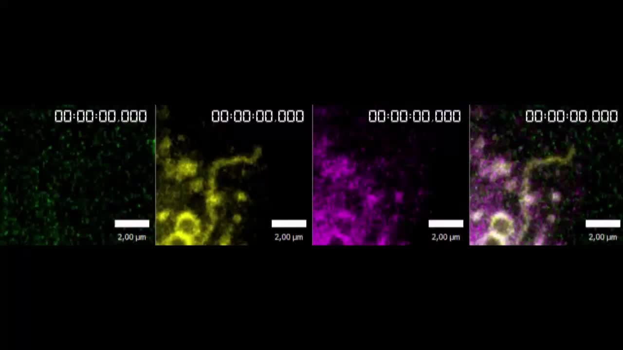 SNX3 drives maturation of Borrelia phagosomes by forming a