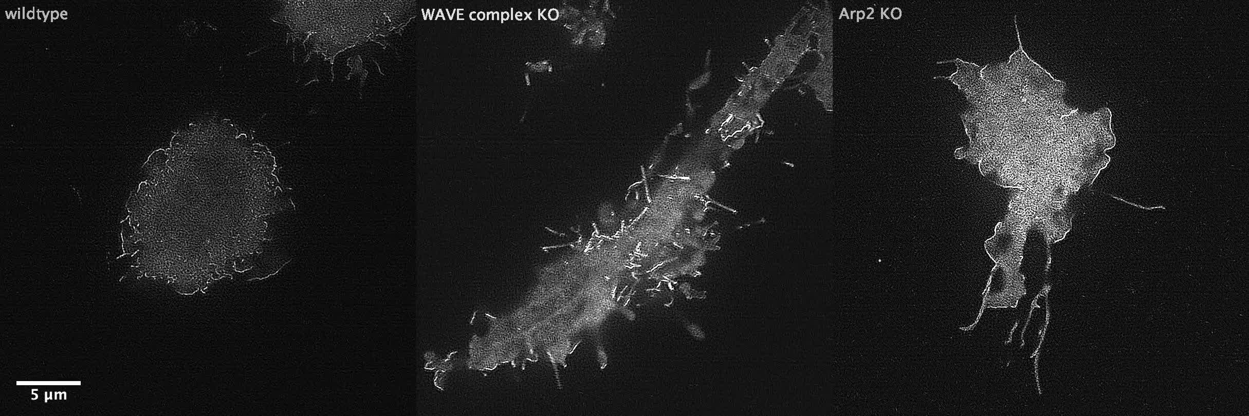 The WAVE complex associates with sites of saddle membrane ...