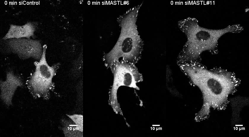 MASTL promotes cell contractility and motility through kinase ...