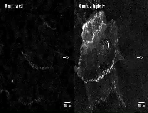 Intermediate filaments control collective migration by restricting ...