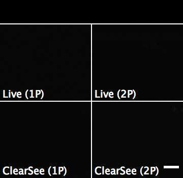 ClearSee: a rapid optical clearing reagent for whole-plant