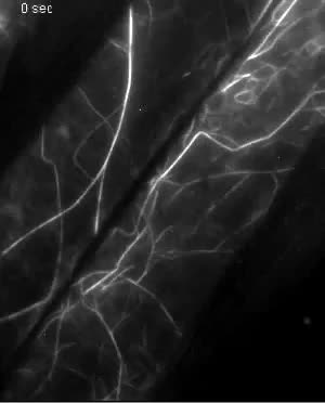 Live cell imaging reveals actin-cytoskeleton-induced self