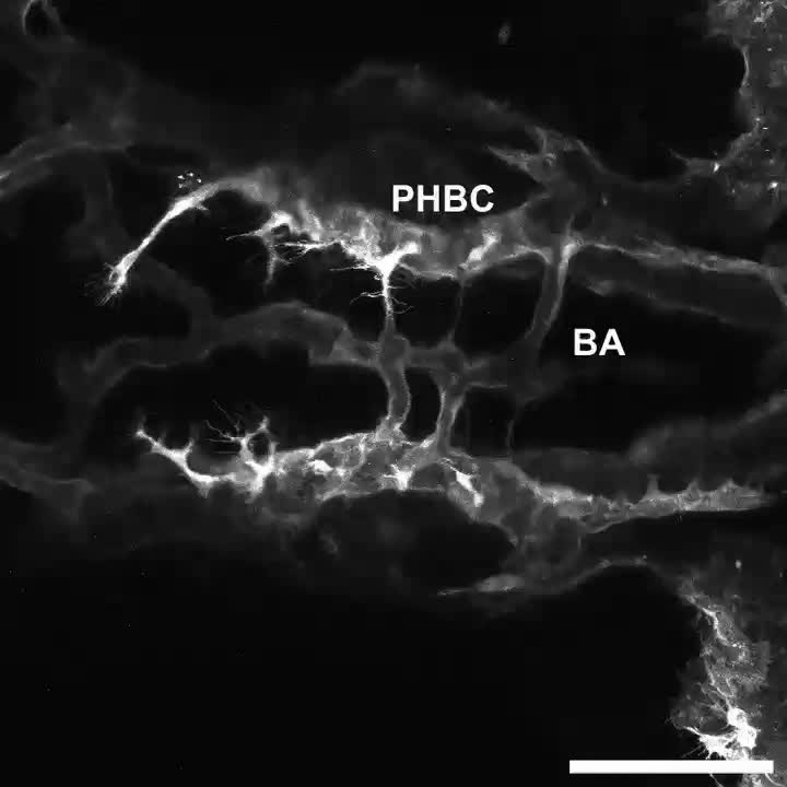 Reck enables cerebrovascular development by promoting