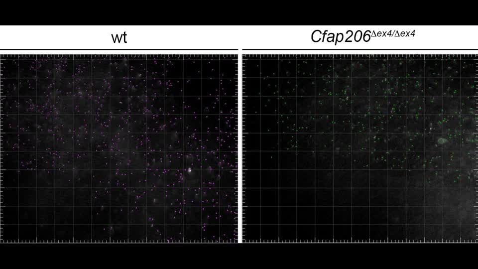 The FOXJ1 target Cfap206 is required for sperm motility ...